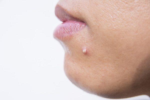 chin acne cause